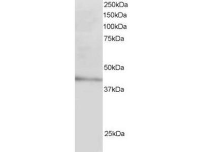 anti-ldlrap1a antibody