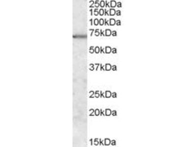 anti-MAP/microtubule Affinity-Regulating Kinase 2 (MARK2) (Internal Region) antibody