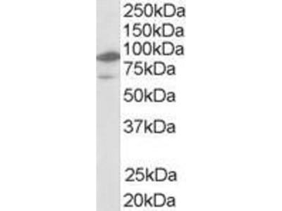anti-Nuclear Receptor Subfamily 1, Group H, Member 2 (NR1H2) (N-Term) antibody