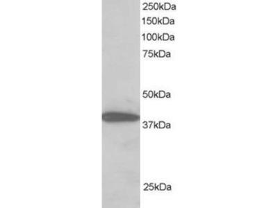 anti-PPP1R8 Antibody
