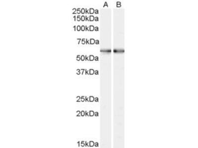 anti-SMO antibody