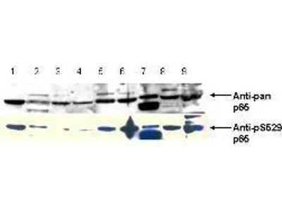 anti-p65 (RELA) antibody