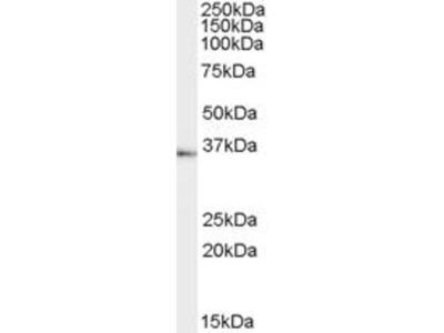 anti-TACR1 antibody