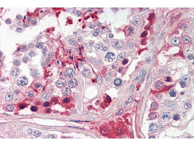 anti-CRISP2 antibody