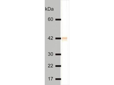 anti-KRT18 (Keratin 18) antibody