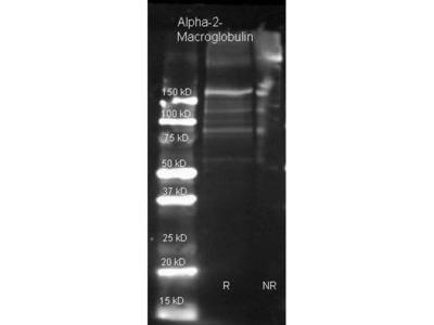 anti-A2M (PZP) antibody