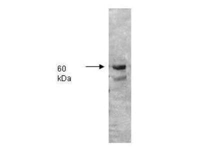 anti-ALP (Alkaline Phosphatase) antibody