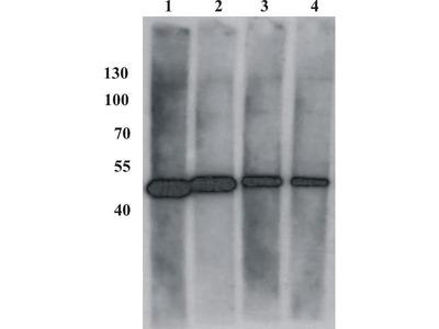 anti-Bovine Papillomavirus Type-1 Transactivator Protein E2 (BPV-1 E2 Protein) (AA 182-190) antibody