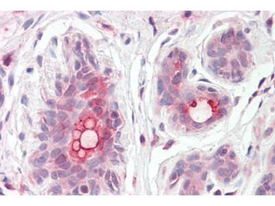 anti-ABCC11 antibody