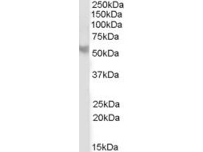 anti-PPP2R5B antibody