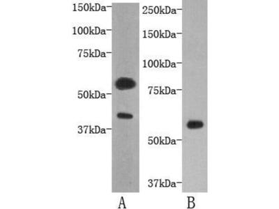 anti-TMEM57 antibody