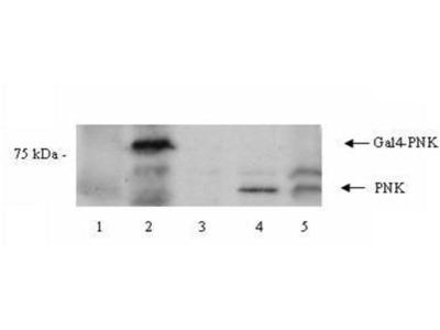 anti-PNKP antibody