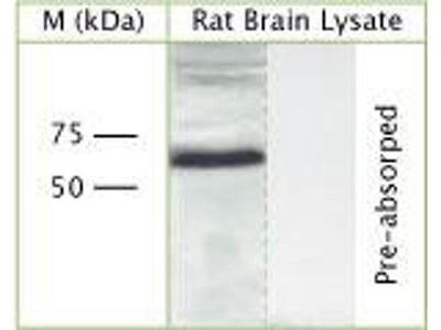 anti-CHMP6 antibody
