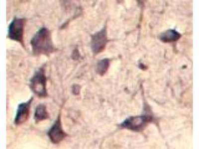 anti-SEC22B antibody