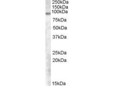 anti-TCHHL1 Antibody