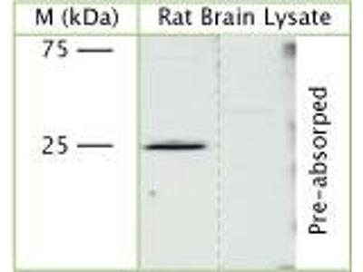 anti-CHMP3 antibody