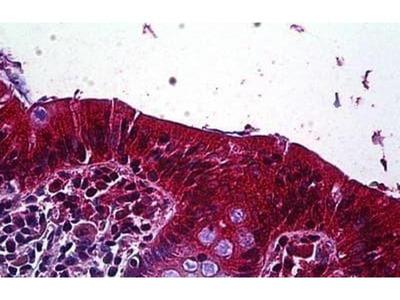 anti-LRP4 antibody