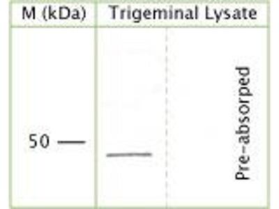 anti-NGFR antibody