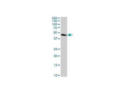 anti-Chemokine (C-C Motif) Receptor-Like 2 (CCRL2) antibody