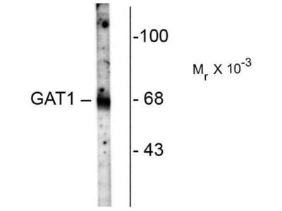 anti-SLC6A1 (GAT1) antibody