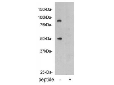 anti-PROC antibody