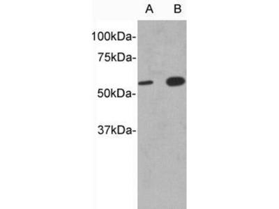 anti-IL13RA1 Antibody