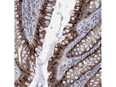 Anti-CKAP2L Antibody