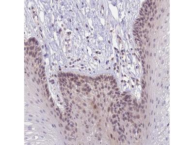 Anti-CRAMP1 Antibody