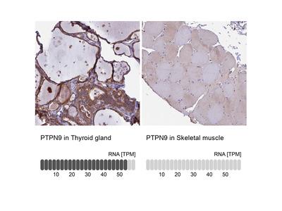 Anti-PTPN9 Antibody