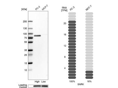 Anti-SNRK Antibody