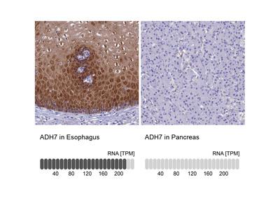 Anti-ADH7 Antibody