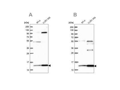 Anti-TRMT112 Antibody