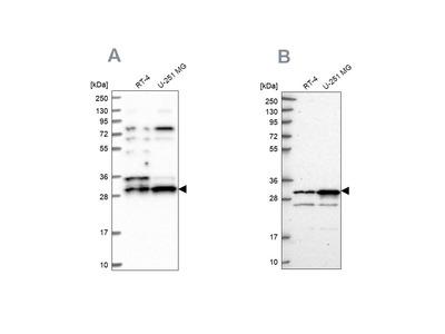 Anti-HAUS1 Antibody