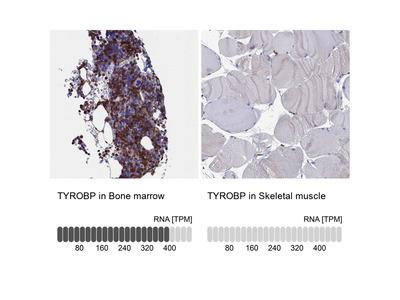Anti-TYROBP Antibody
