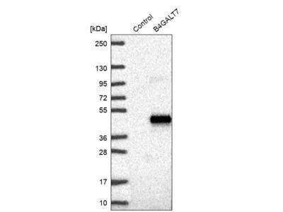 Anti-B4GALT7 Antibody