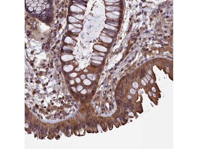 Anti-DAPK3 Antibody