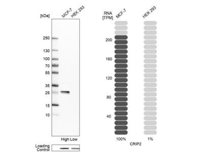 Anti-CRIP2 Antibody