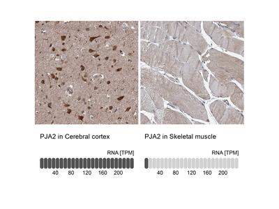 Anti-PJA2 Antibody