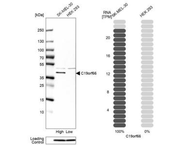 Anti-C19orf66 Antibody