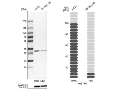 Anti-KNSTRN Antibody