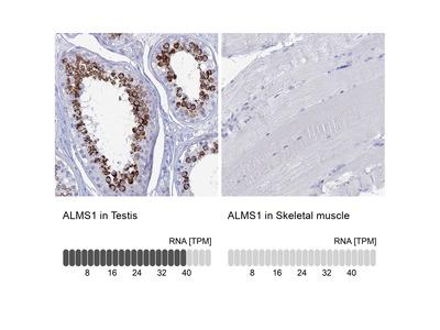 Anti-ALMS1 Antibody