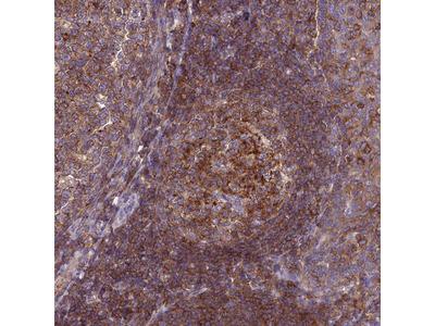 Anti-IRAK3 Antibody