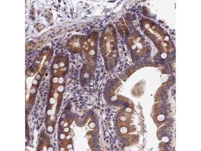 Anti-EPB41L4B Antibody