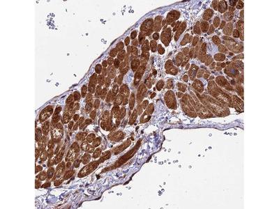 Anti-ESCO1 Antibody
