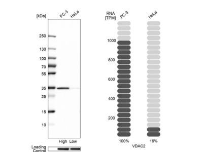 Anti-VDAC2 Antibody