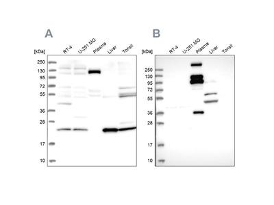 Anti-REXO1 Antibody