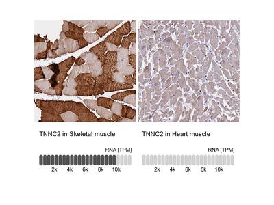 Anti-TNNC2 Antibody