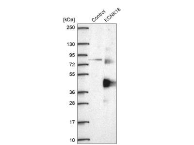 Anti-KCNK18 Antibody