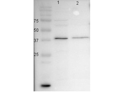 BCAT2 antibody