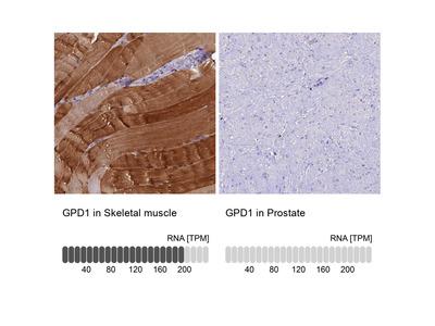 Anti-GPD1 Antibody